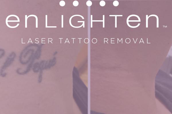 restorative-laser-center-enlighten-tattoo-removal-service